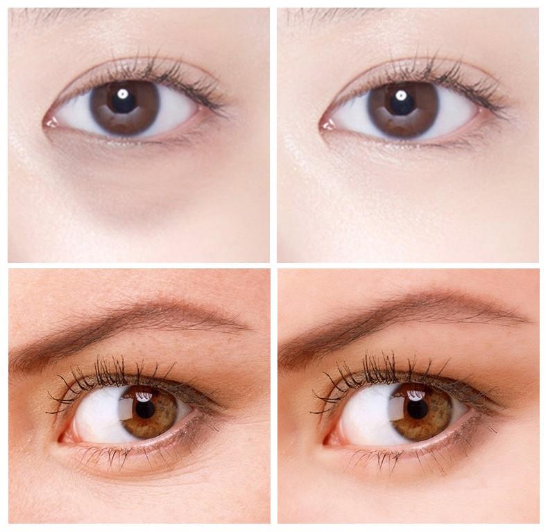 Крем-роллер для глаз c тремя охлаждающими массажными роликами Images Roll eye Skin cream от усталости и морщин, 20 гр.